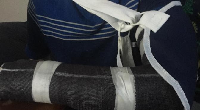My nephew broke his arm last night