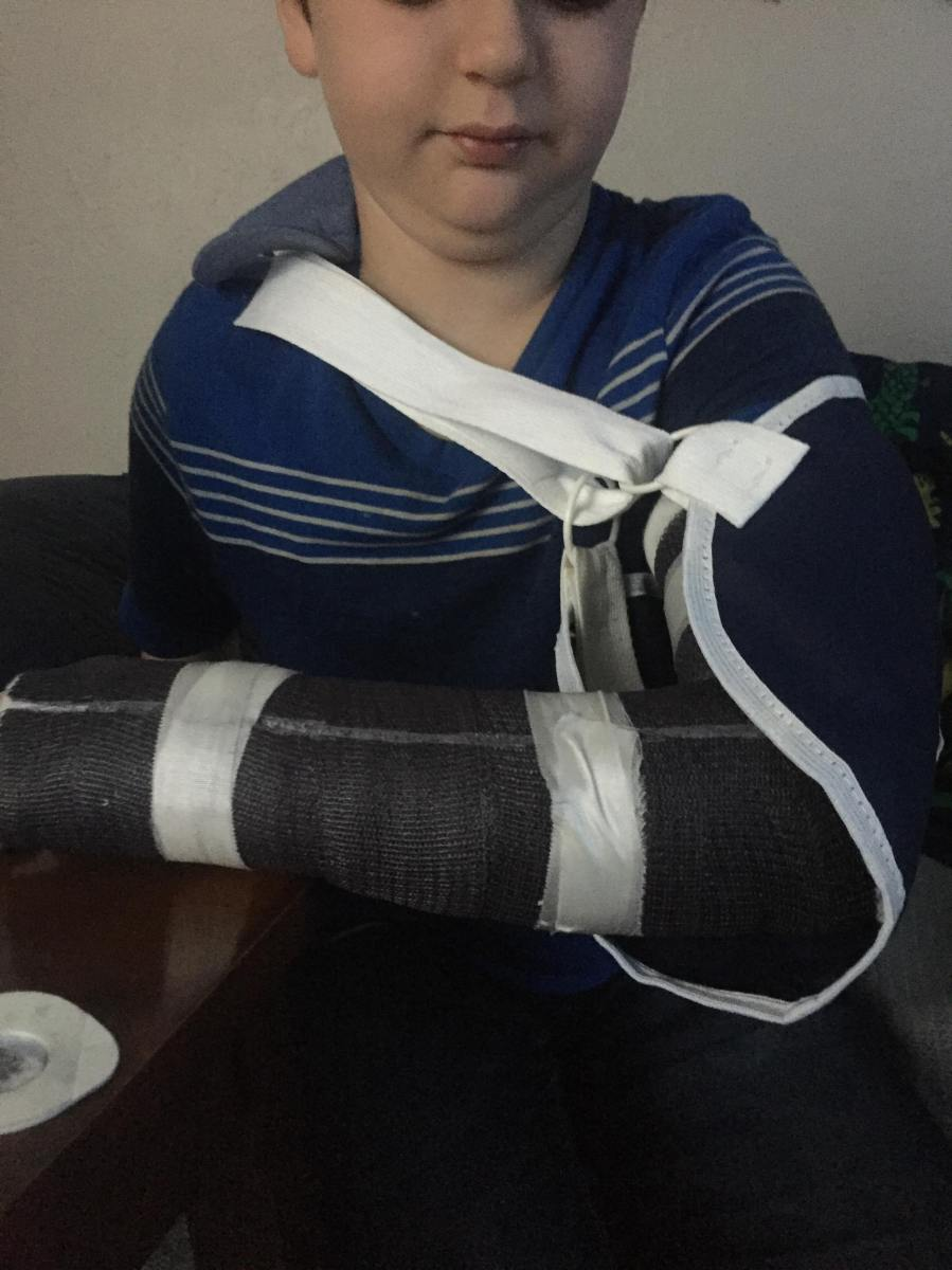 My nephew broke his arm last night